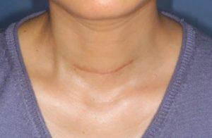 Биопсия щитовидной железы. Биопсия узлов щитовидной железы. ГКБ №71